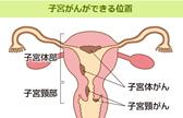 閉経前の不正出血。子宮体がんの可能性がある?