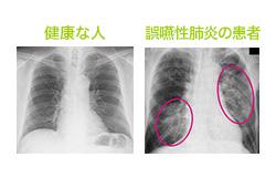 誤嚥性肺炎の予防策を知りたい