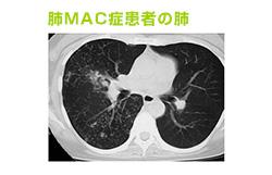 せきが長引いて「肺MAC症」ではと心配。どんな病気ですか?
