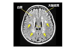 脳のMRI検査で白質に病変が見つかった。将来、認知症になる?