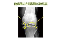 歩けないほど膝が痛む。「偽痛風」のようだがどんな病気?