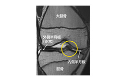 膝の半月板損傷でリハビリ中。ジョギングは再開できるの  か?